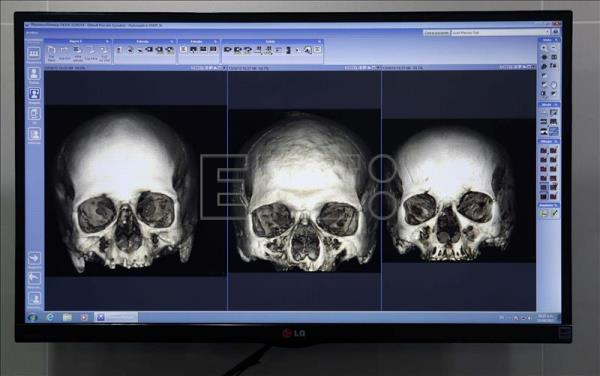 A Peruvian official shows the most cutting-edge technology used in forensic odontology in Lima, Peru. EFE / Ernesto Arias