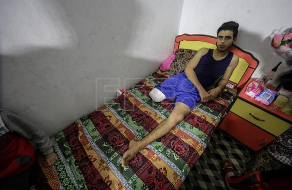 Young Gazans losing limbs to Israeli bullets