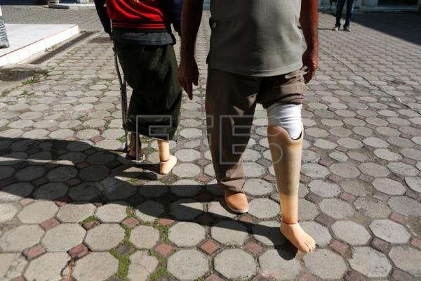 how to walk with a prosthetic leg